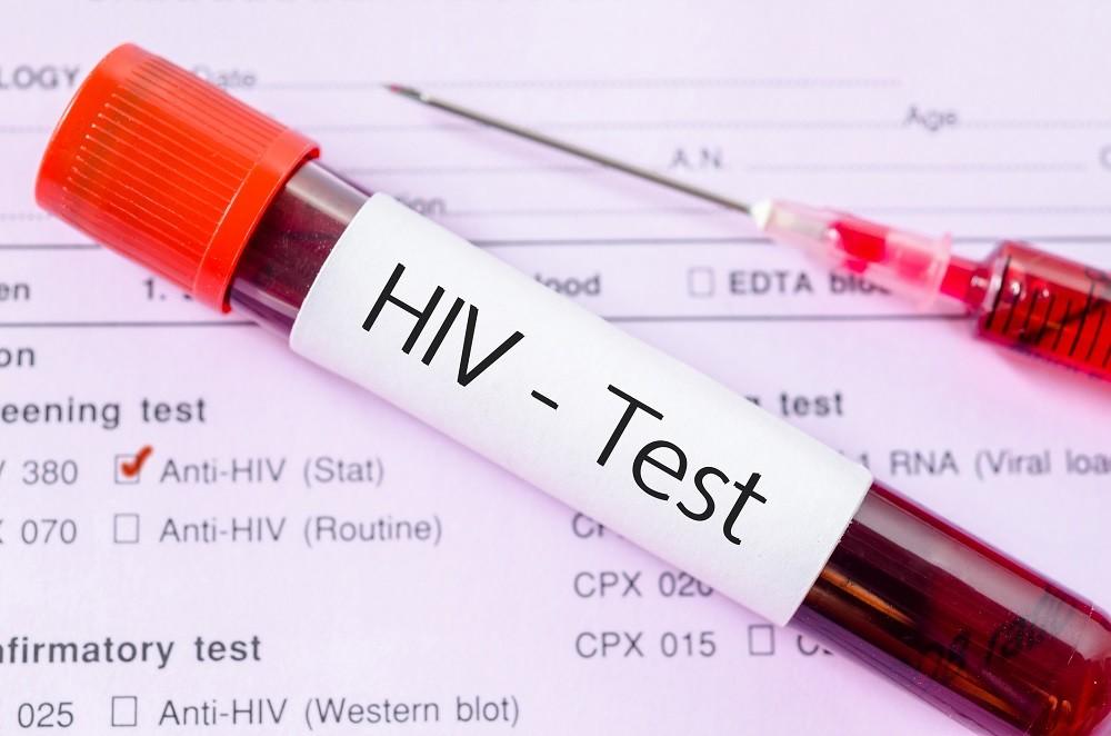 هل يظهر الإيدز في تحليل الدم العادي