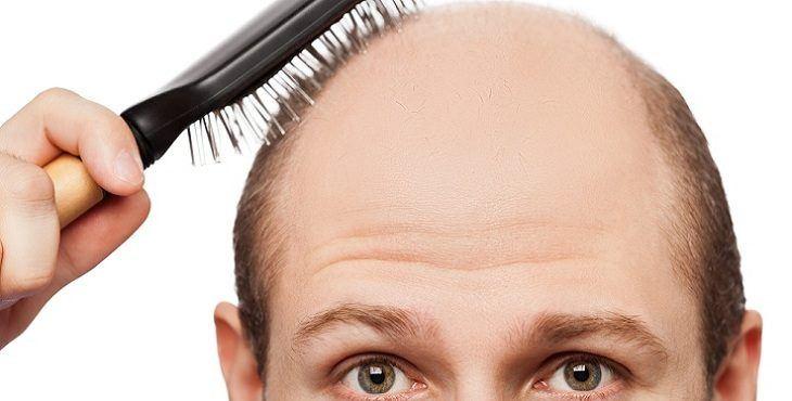 أفضل طرق علاج تساقط الشعر للرجال